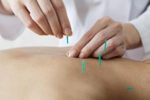 Phương pháp cấy chỉ điều trị hen phế quản